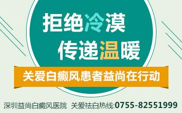 深圳预防白癜风需要哪些条件
