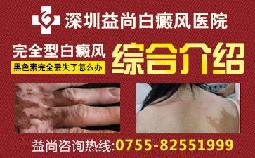 深圳可以不治疗白癜风吗