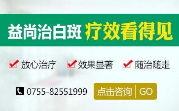 深圳白癜风的治疗有何误区