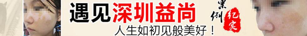 深圳益尚白癜风医院在线咨询